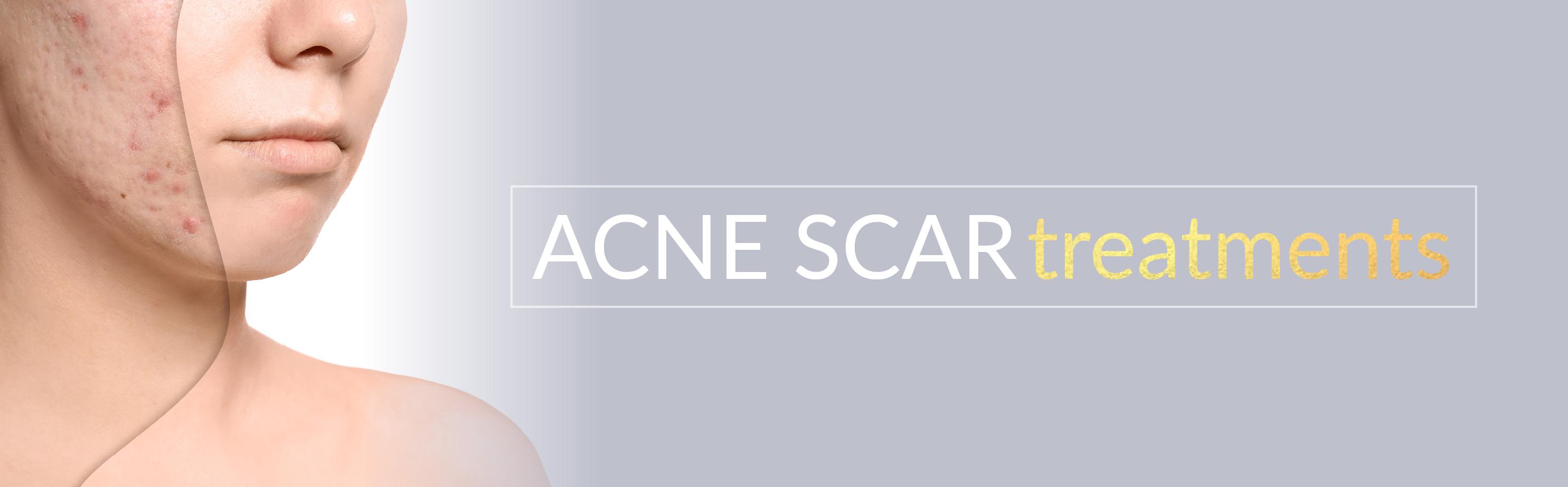 acne-scar-treatments-banner